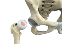 Hip Chondral Injuries