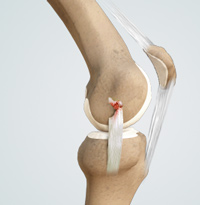 Knee Medical Collateral Ligament (MCL) Injury