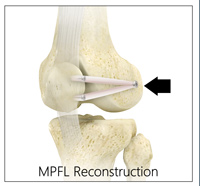 Medial Patellofemoral Ligament (MPFL) Reconstruction