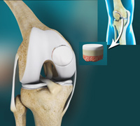 Osteochondral Allograft Transplantation