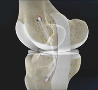 Posterior Cruciate Ligament (PCL) Reconstruction