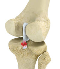Knee Posterior Cruciate Ligament (PCL) Injury